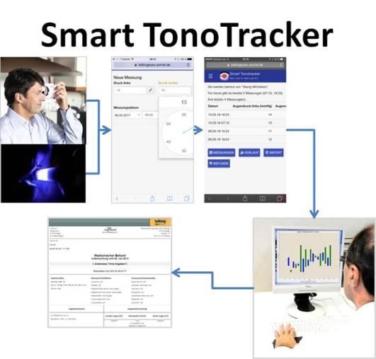 SmartTonoTracker